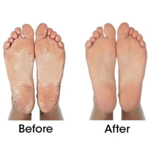 The Callus Removing Foot Treatment - removes layers of tough, dead skin easily and effortlessly
