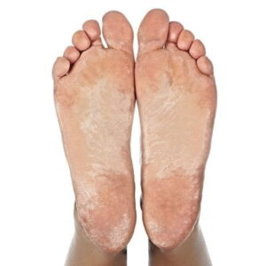 The Natural Callus Therapy - now you can enjoy a smooth and callous-free feet again