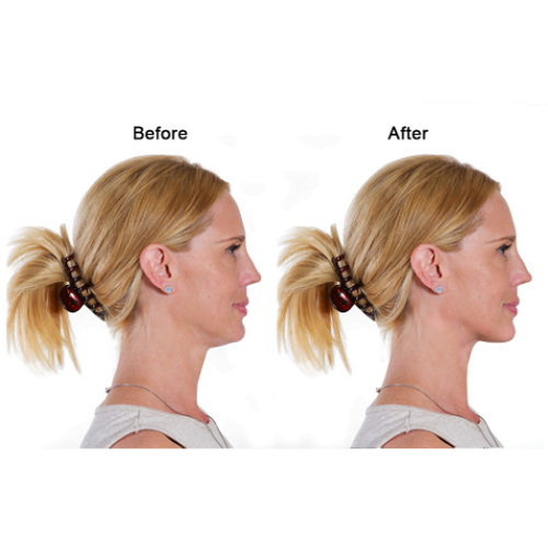 Two Minute Chin Exerciser1